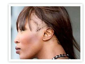 Central Centrifugal Cicatricial Alopecia (CCCA)