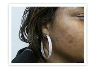 Post-Inflammatory Hyperpigmentation
