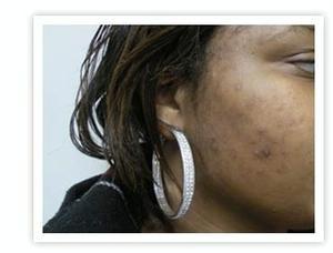 Post-Inflammatory Hyperpigmentation
